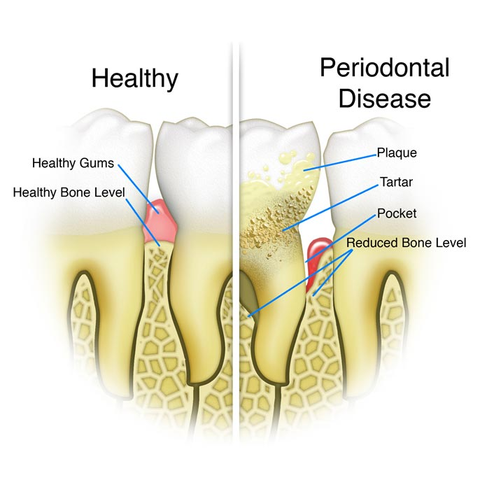 Periodontal Cleaning - Dental Services