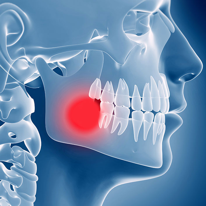 TMJ Treatment - Dental Services